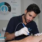 Realización de Electrolisis Percutanea Intratisular (EPI) para un tendinopatía del tendón rotuliano.