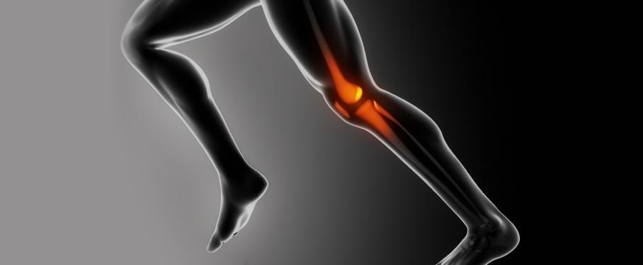 """¿Qué es el Síndrome de la cintilla iliotibial o """"Rodilla del corredor""""?"""