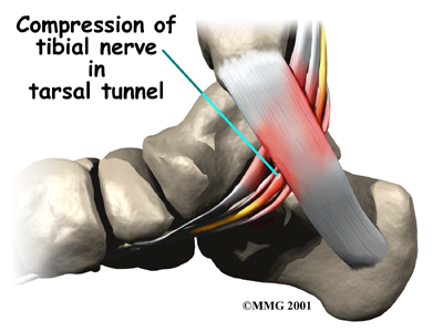 foot_tarsal_tunnel_causes01_0