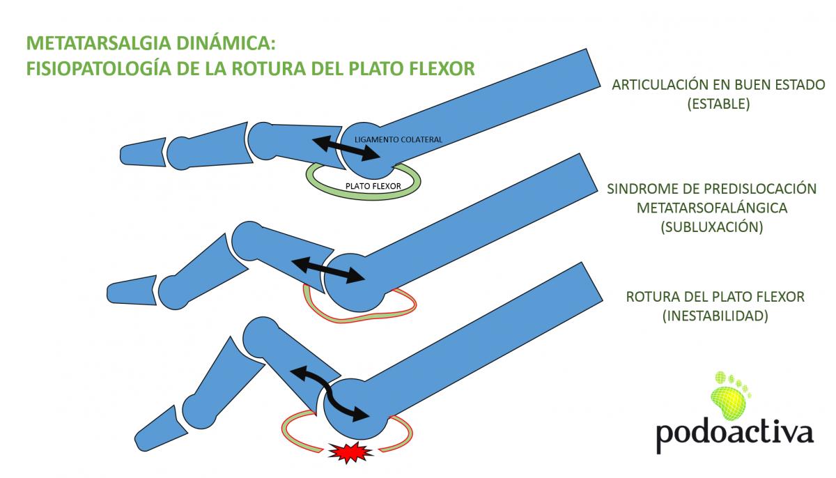 metatarsalgia_dinamica_sindrome_de_predislocacion_rotura_plato_flexor
